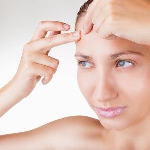 acne-forehead