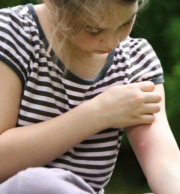mosquiti-bite