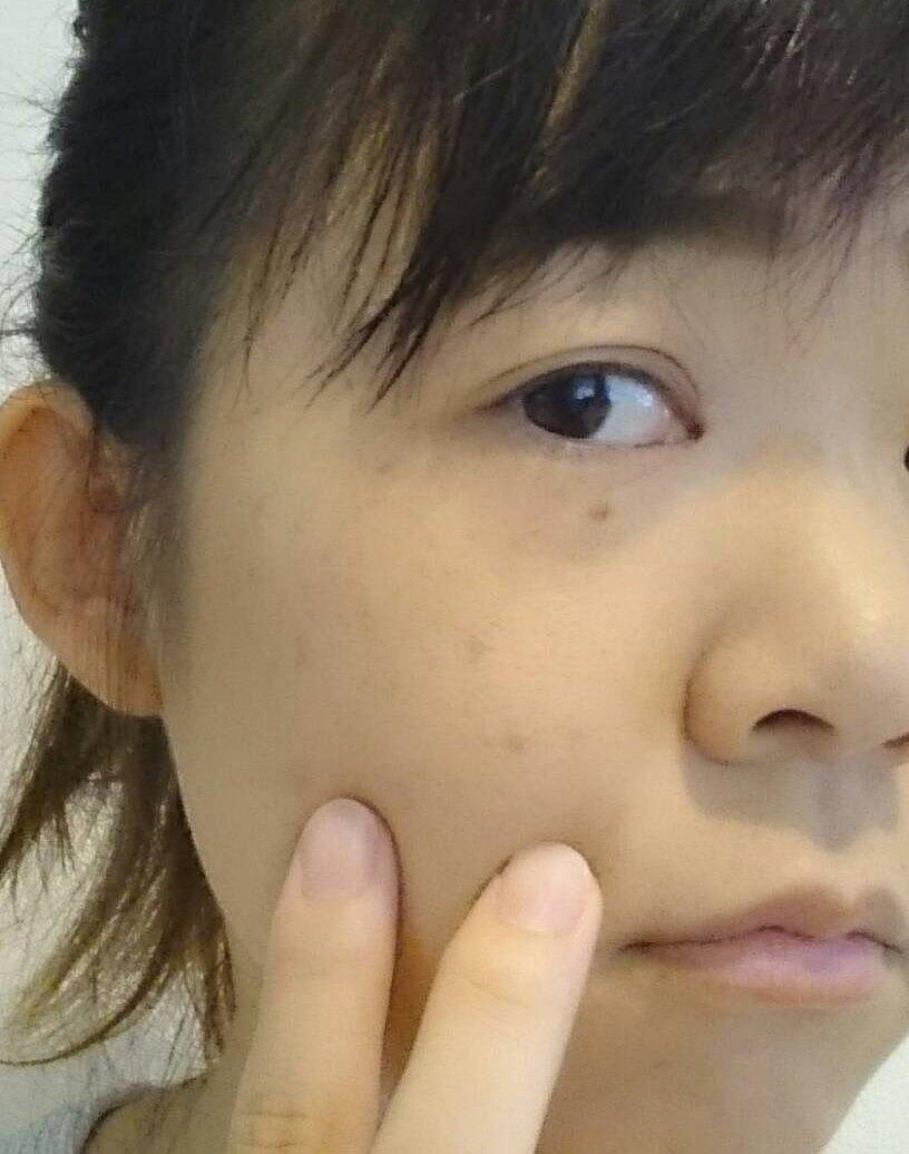 nikibi-care