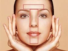 t-zone-acne
