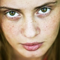 freckles-and-age-spots